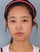 韩国巴诺巴奇整形外科-巴诺巴奇医院双鄂手术案例展示!