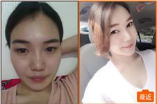 韩国巴诺巴奇颧骨缩小后浮肿严重吗