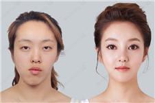 韩国做眼睛排名好的医院有哪些?