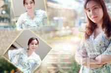 美护韩国护理师张娟整形进行时(五):拆线回到十年前