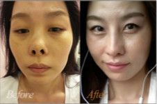 4月31日鼻部修复,帮你解决隆鼻失败挛缩!