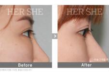 韩国赫尔希眼底脂肪去除术如何?会再次复发吗?