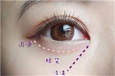眼袋吸脂需要多少钱,做这种手术正确靠谱吗?