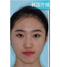 韩国齐娥牙科医院-韩国齐娥官方双鄂手术恢复案例