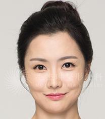 韩国毛杰琳整形医院-韩国毛杰琳医院发际线移植案例