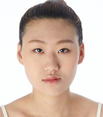 韩国梦想整形外科双鄂手术案例