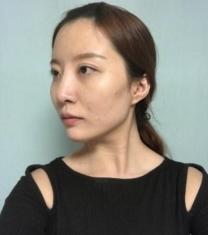韩国View整形医院-韩国必妩尹昌云轮廓三件套真人术前照片