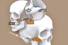 """我院白汀桓颧骨修复,用""""3D骨骼打印机""""辅助手术!"""