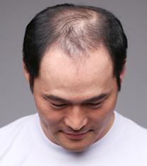 韩国毛杰琳整形医院-韩国毛杰琳医院男性植发案例对比