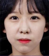 韩国清潭优梁桐准眼部综合整形前后对比照片