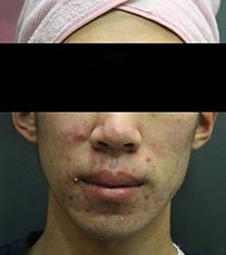 韩国童颜中心面部痤疮治疗前后照片