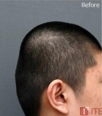 韩国ITEM整形医院-韩国爱婷骨水泥填充后脑勺前后照片