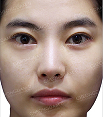 韩国清潭优整形-韩国CDU清潭优歪鼻矫正真人对比