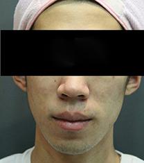 童颜中心-韩国童颜中心面部痤疮治疗前后照片