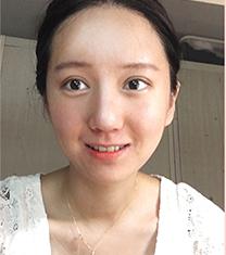 韩国jj整形外科眼修复+隆鼻手术案例对比