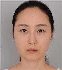韩国jj洪镇柱整形外科面部轮廓综合整形对比