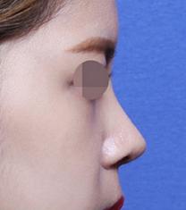 韩国女神整形-韩国女神医院鹰钩鼻矫正案例对比