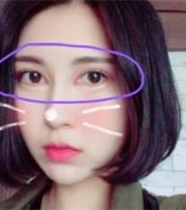 韩国SECRET整形-韩国希克丽安柄俊眼角修复前后对比照片