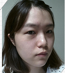 韩国JJ洪镇柱双鄂整形真人术后对比