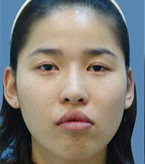 韩国江南三星整形外科-韩国江南三星双鄂手术案例对比