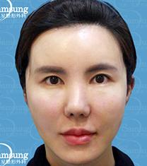 韩国江南三星整形外科-韩国江南三星面部提升手术案例对比