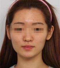 巴诺巴奇整形医院-巴诺巴奇轮廓整形+隆鼻前后对比照片