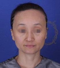 韩国女神整形-韩国女神医院面部自体脂肪填充案例对比