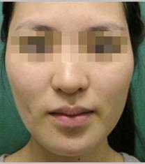 韩国small face整形下巴整形手术案例_术前
