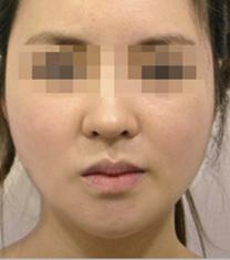 韩国small face整形下巴整形手术案例_术后