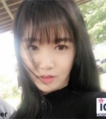 韩国ID双鄂整形术后3个月对比照片