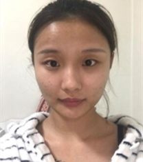 韩国ID整形医院面部综合手术前后对比照片