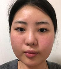 韩国VG百?利酷面部吸脂+鼻综合真人案例?对比