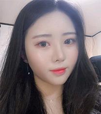 韩国VG百利酷面部吸?脂+鼻综合真人案例对比