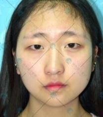大同清木眼综合手术前后对比照片