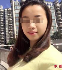 宁波韩美整形医院-宁波韩美整形医院面部吸脂手术对比案例