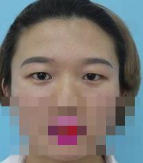 宁波韩美整形医院-宁波韩美整形医院眼部手术对比案例
