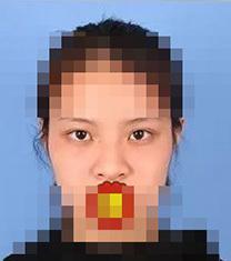 宁波韩美整形医院-宁波韩美整形医院眼鼻综合手术案例