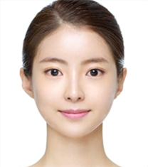 韩国德琳整形外科-韩国dream轮廓整形+脂肪填充案例图