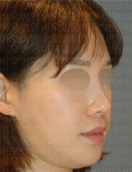 韩国BIO面部埋线提升案例