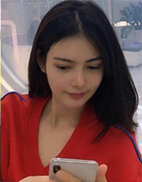 韩国乐于丽颜整形外科蒜头鼻缩鼻翼矫正案例对比