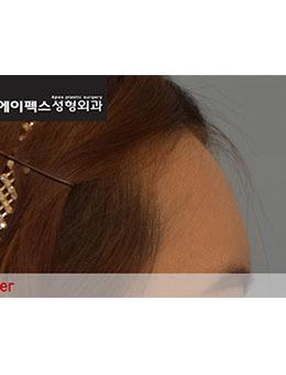 韩国爱佩斯整形外科额头填充真人超自然案例