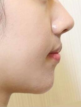 韩国MeTop整形外科下巴填充手术对比案例_术后