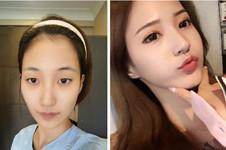 为什么说韩国TS整形眼睛比鼻子做得好?案例图说明真相!