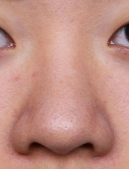 韩国纯真整形医院-纯真整形医院「素纯颜」鼻翼缩小+mesh隆鼻效果展示图