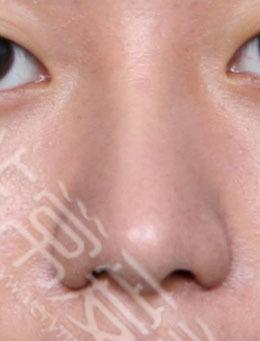 韓國純真整形醫院-純真整形醫院「素純顏」鼻翼縮小+mesh隆鼻效果展示圖