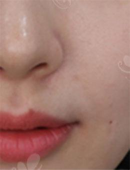 韓國純真整形醫院-韓國純真整形官網Cavern埋線提升去鼻唇溝案例圖片