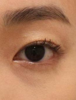 韩国纯真双眼皮手术打包图,3~5mm宽度的萌动初恋眼!