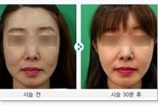不开刀面部提升效果好吗?韩国miracle美来可方法+案例解答