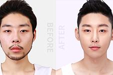 真人案例对比:韩国纯真、原辰哪家鼻子做的好?