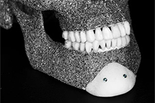 medpor垫下巴直白解释分析,它和膨体硅胶分别适合什么人?